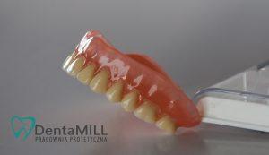 Proteza Pracownia Protetyczna Wręczyca Wielka Dentamill