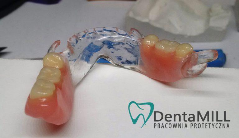 Proteza Acron Dentamill